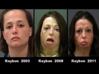 צפו: איך נראים נרקומנים לפני ואחרי