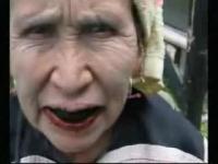 יש לי שיניים מגעילות